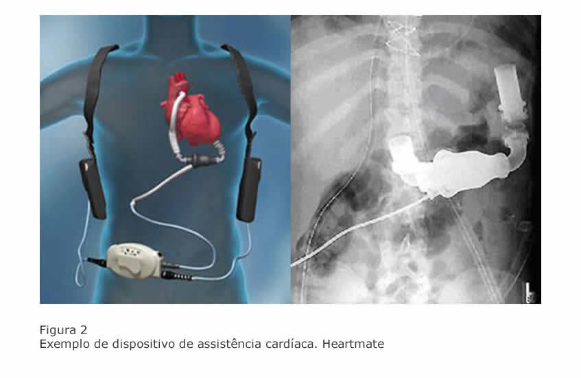 dispositivo-assistencia-cardiaca-heartmate