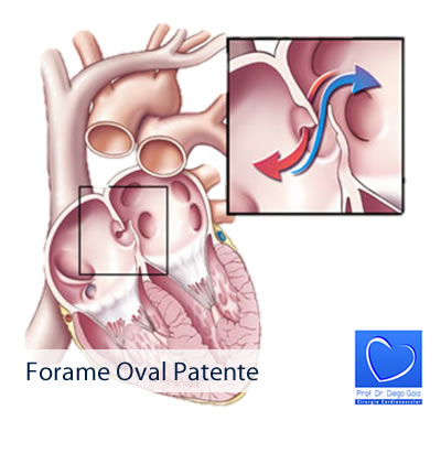 Forame Oval Patente